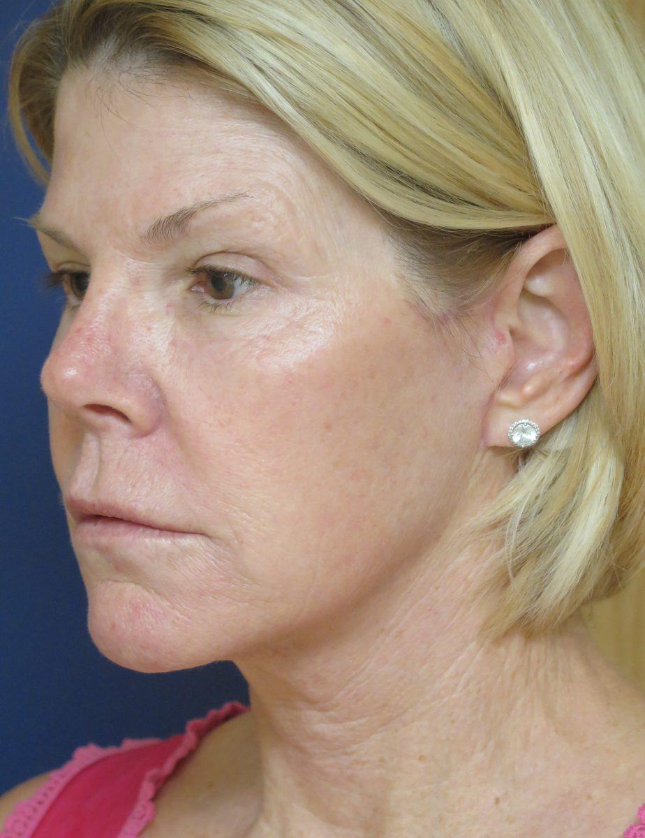 Patient picture after facelift at Nuance Facial Plastics