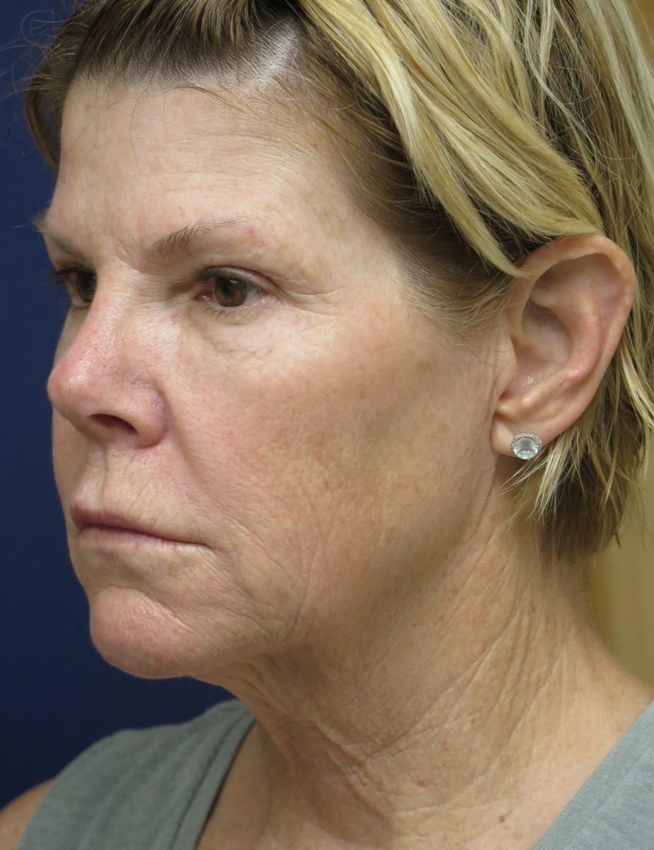 Patient picture before facelift at Nuance Facial Plastics