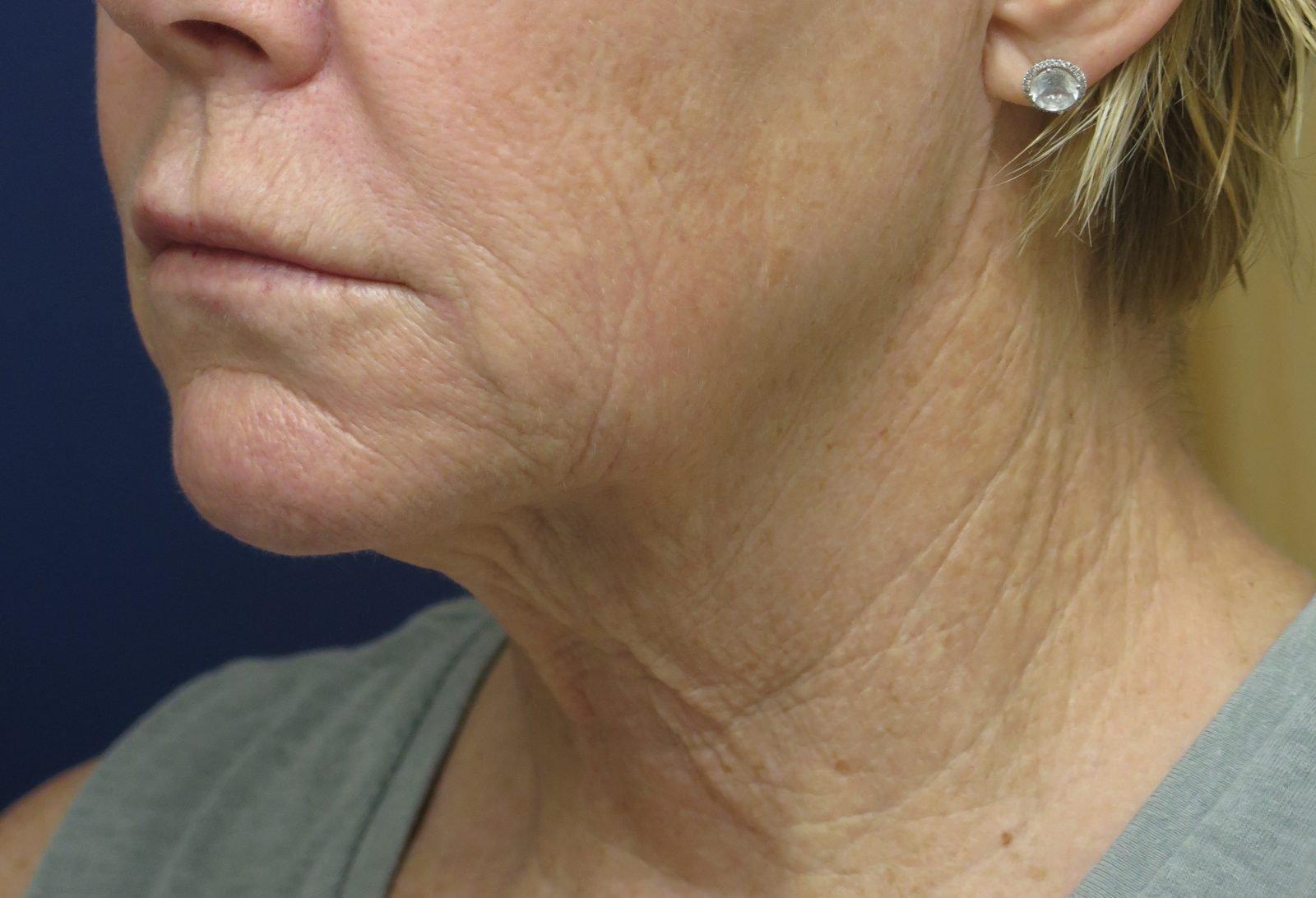Patient picture before neck lift at Nuance Facial Plastics