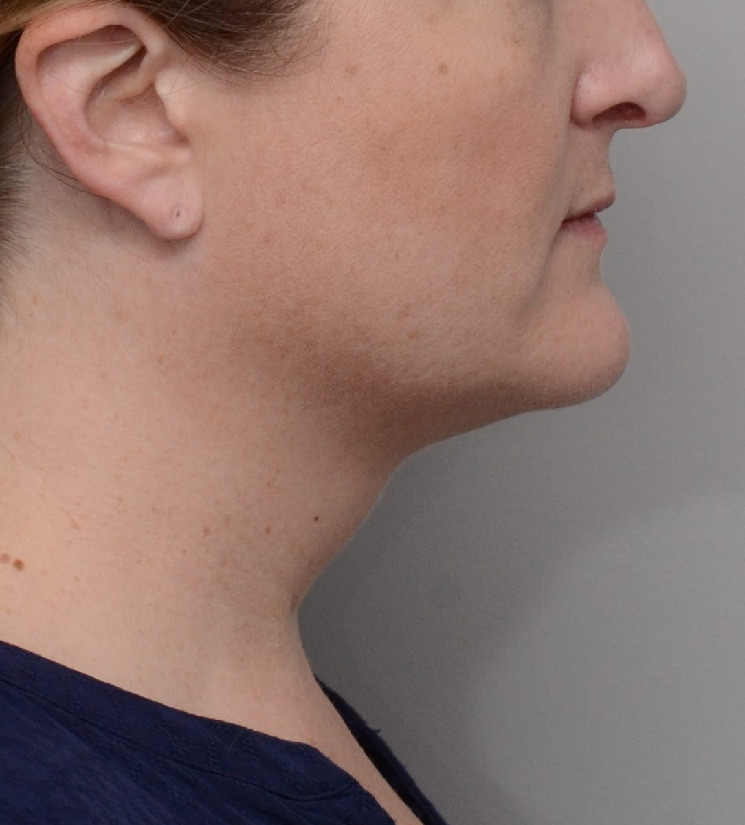 Patient picture after Kybella at Nuance Facial Plastics