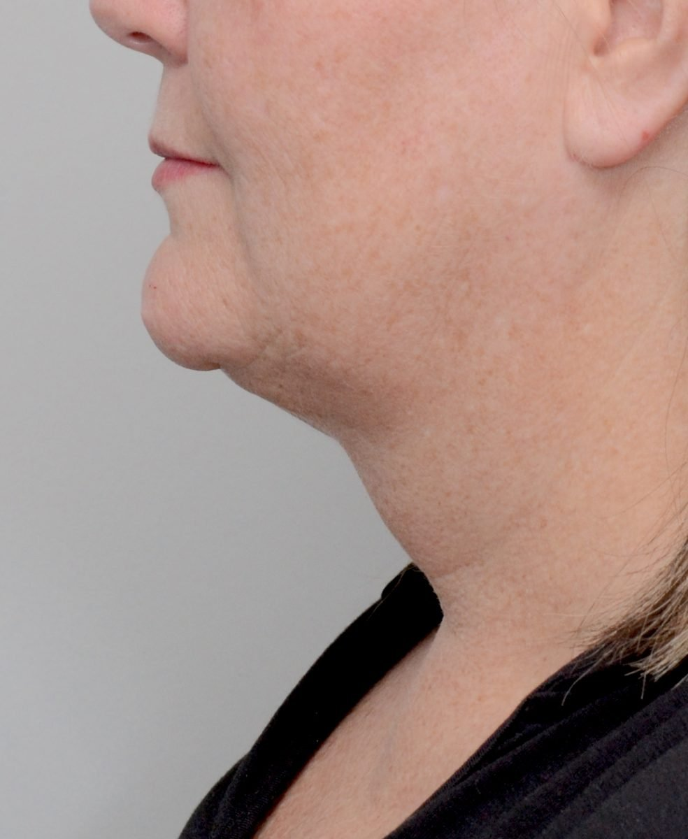 Patient picture after chin and neck liposuction at Nuance Facial Plastics