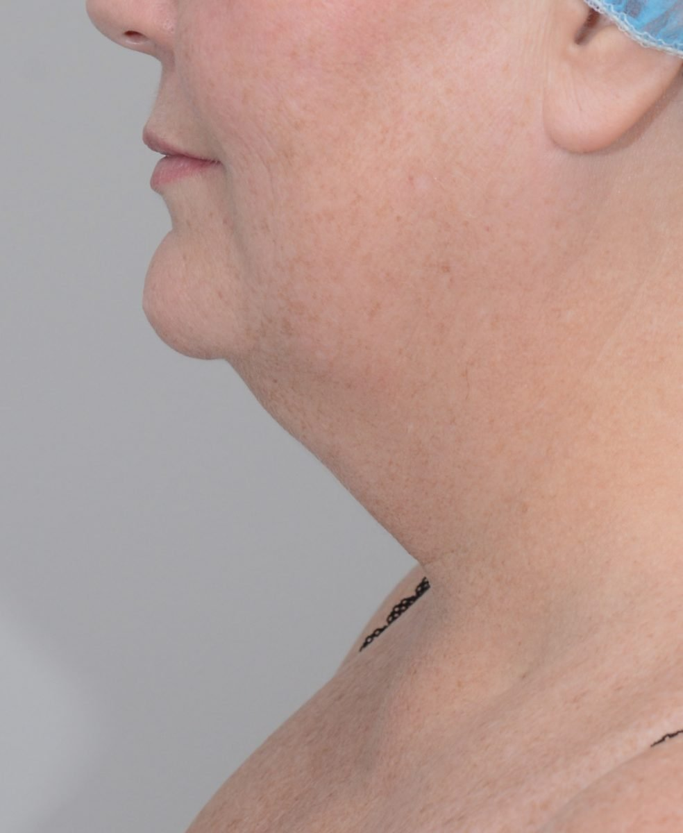 Patient picture before chin and neck liposuction at Nuance Facial Plastics