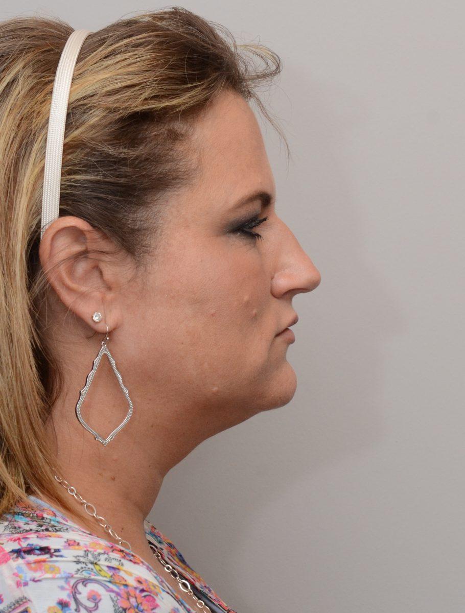 Patient after chin liposuction at Nuance Facial Plastics