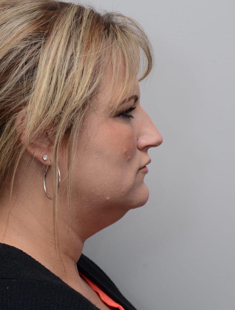 Patient before chin liposuction at Nuance Facial Plastics