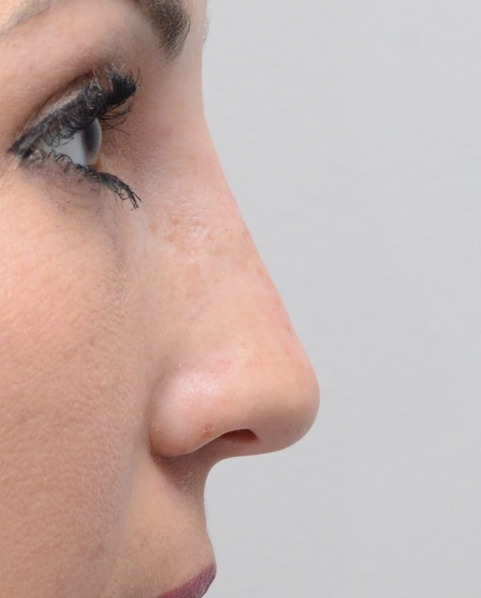 patient picture after non surgical rhinoplasty for hump