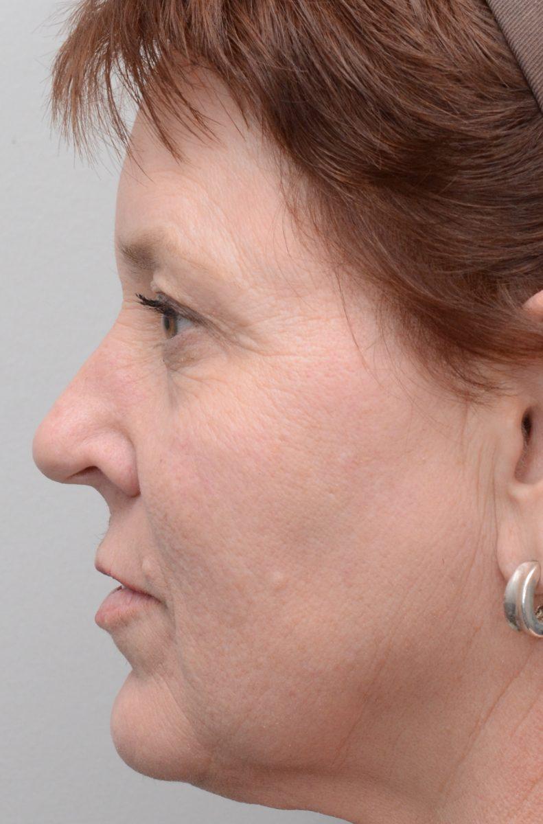 Fractional Erbium Laser Resurfacing for Fine Lines and Wrinkles After