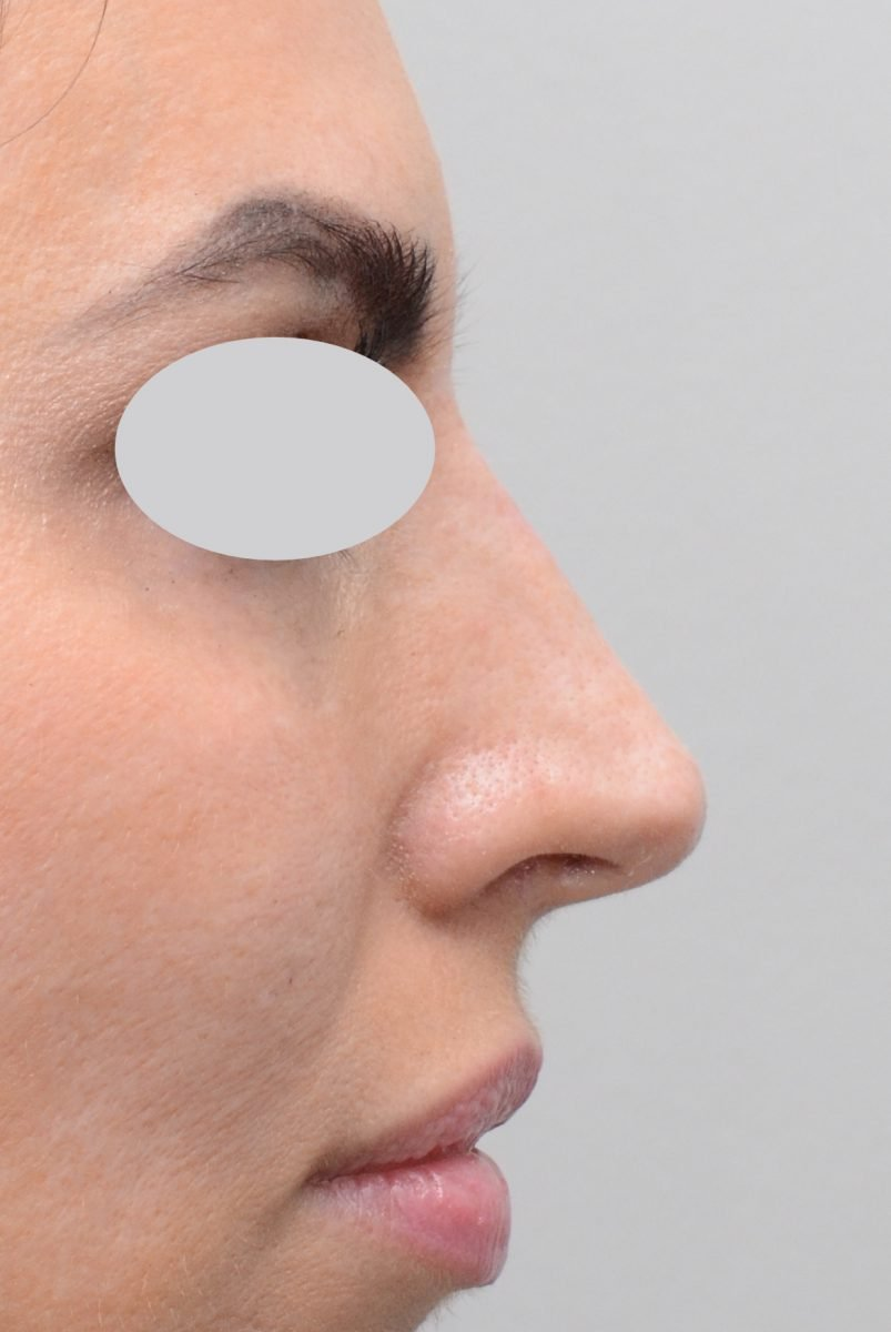Non-Surgical Rhinoplasty Hump Reduction After