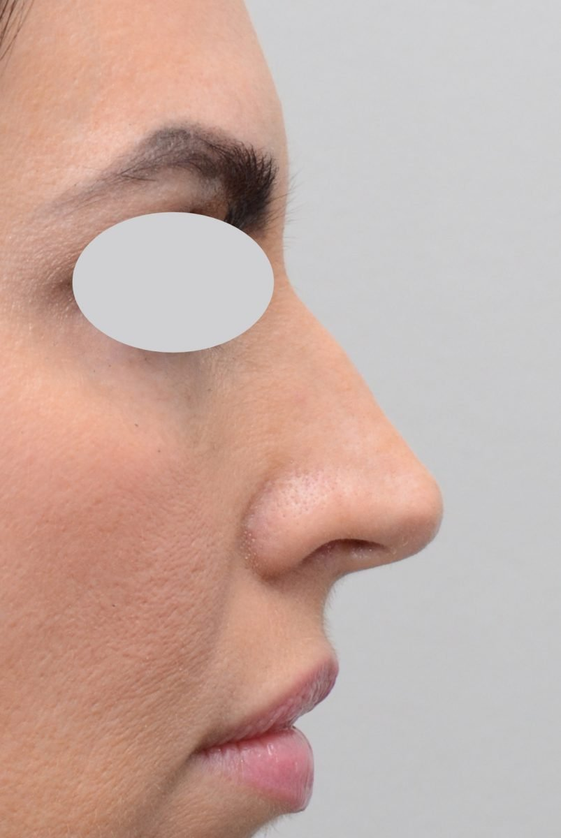 Non-Surgical Rhinoplasty Hump Reduction Before