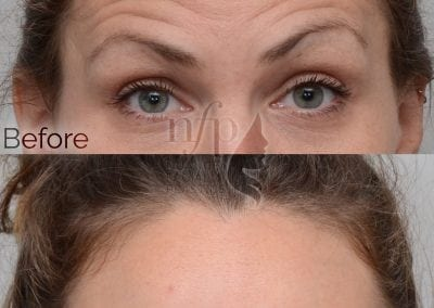 botox forehead frown lines