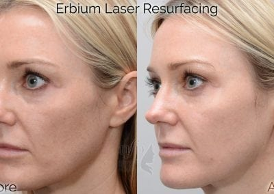 fractional erbium laser before and after