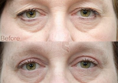 Before and after eyelid lift