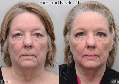before and after face neck lift facelift