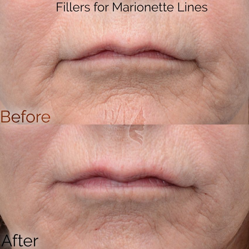 before and after filler marionette lines