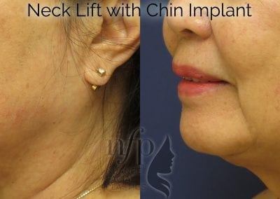 before and after neck lift chin implant