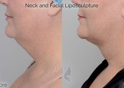 before and after neck liposuction