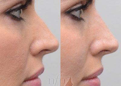 before and after non surgical rhinoplasty