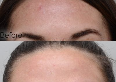 before and after obagi blue peel