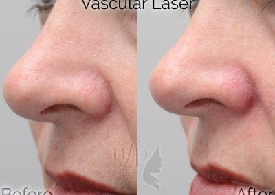 before and after facial vein treatment