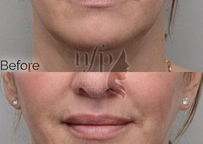 """Volbella is a great product for lasting volume in the lips. As seen here, a """"dehydrated"""" look can be converted into a """"plump"""" look while keeping the results natural appearing."""