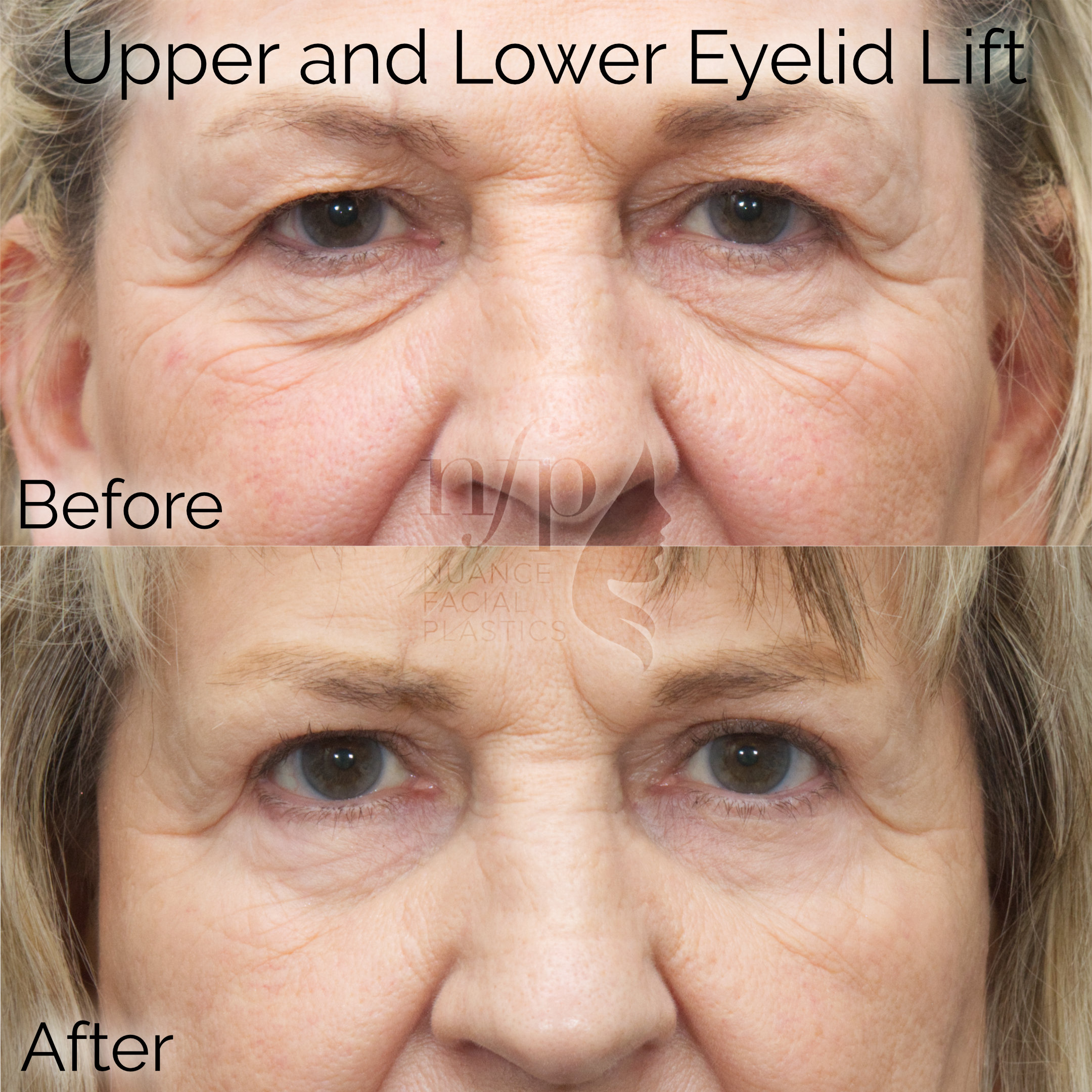 front view upper and lower eyelid lift