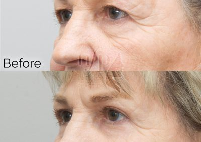Left Oblique View of Upper and Lower Eyelid Lift