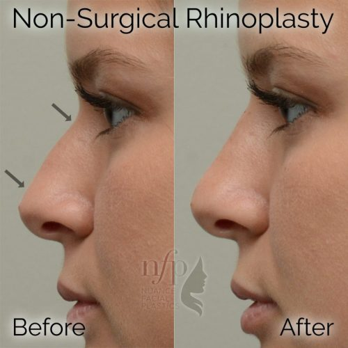 Straightened profile with a non-surgical rhinoplasty